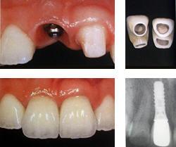 Имплантация зубов Пермь, имплантация зубов в Перми.