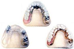 Протезирование зубов, протезирование зубов цены в Перми.